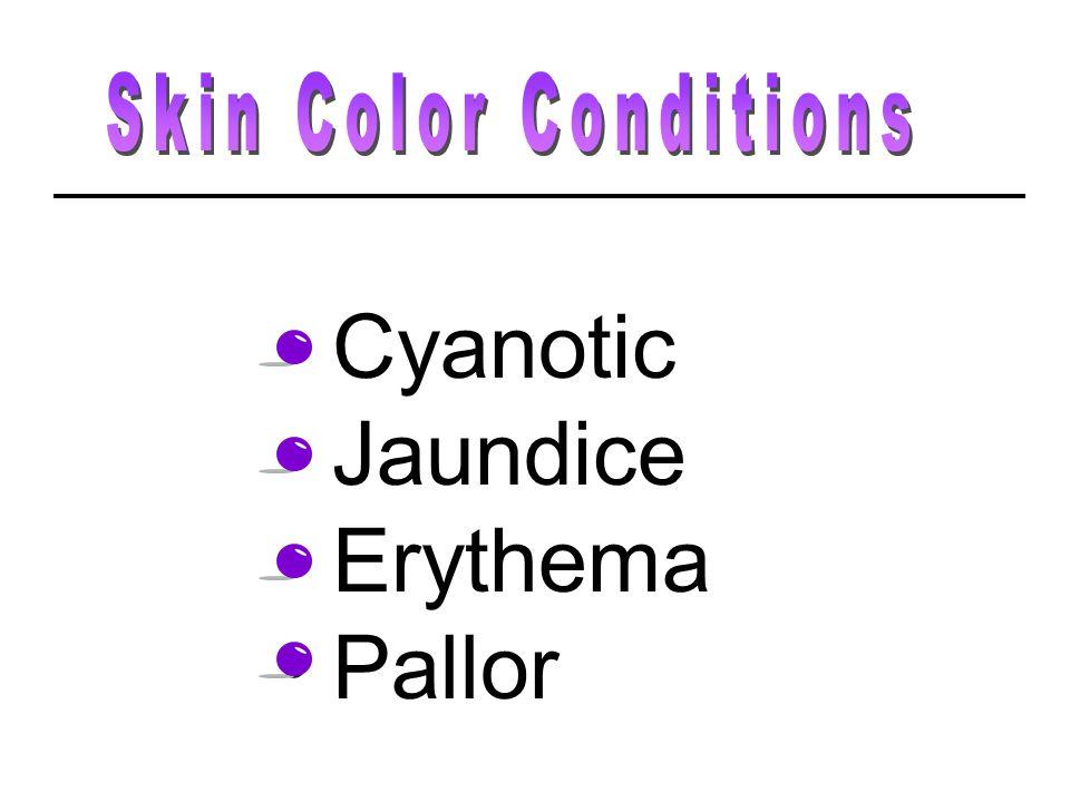 Cyanotic Jaundice Erythema Pallor