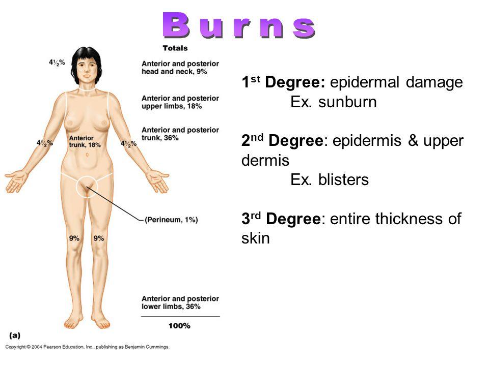 1 st Degree: epidermal damage Ex. sunburn 2 nd Degree: epidermis & upper dermis Ex. blisters 3 rd Degree: entire thickness of skin