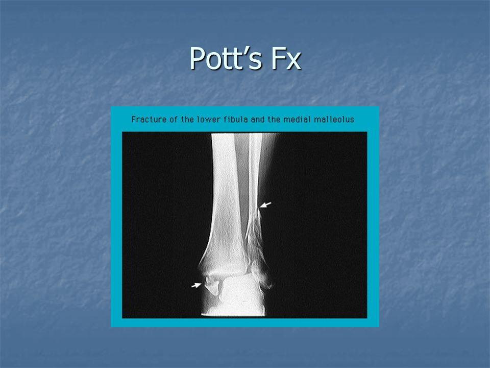Pott's Fx