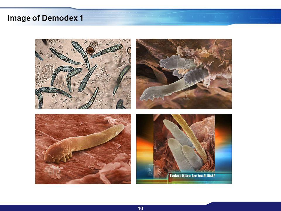 10 Image of Demodex 1