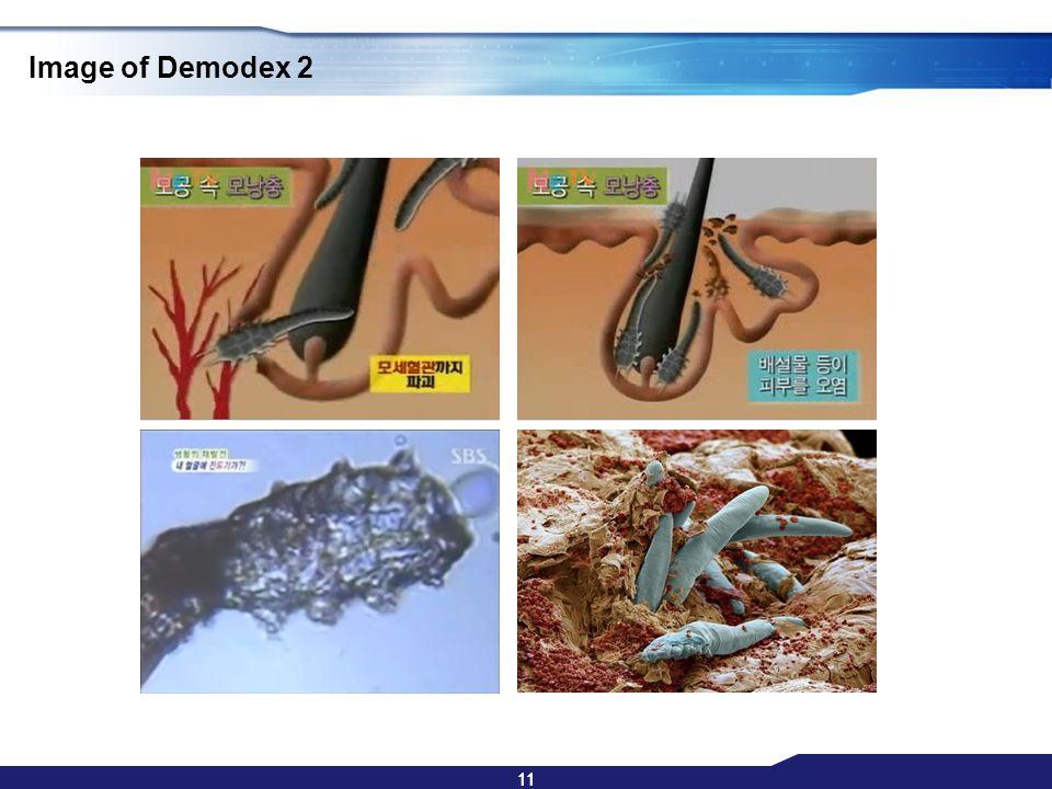 11 Image of Demodex 2