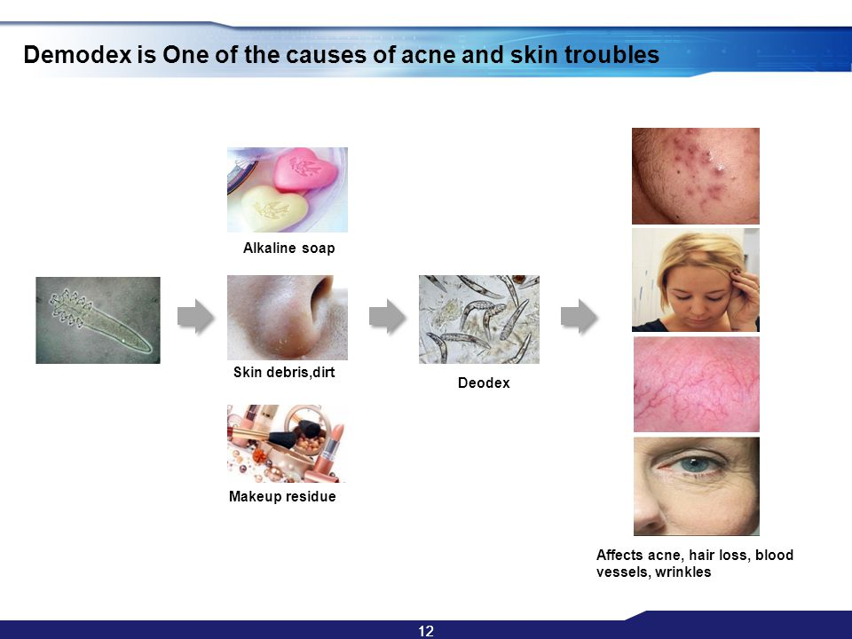 12 Demodex is One of the causes of acne and skin troubles Alkaline soap Skin debris,dirt Makeup residue Deodex Affects acne, hair loss, blood vessels,