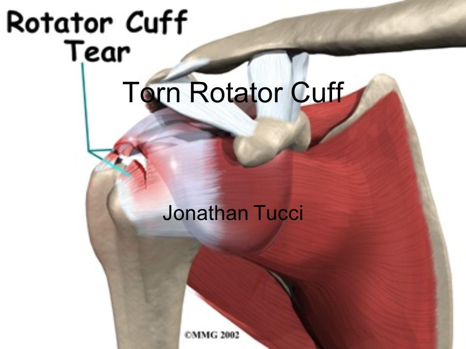Torn Rotator Cuff Jonathan Tucci