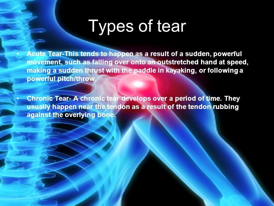Types of tear Acute Tear-This tends to happen as a result of a sudden, powerful movement, such as falling over onto an outstretched hand at speed, mak