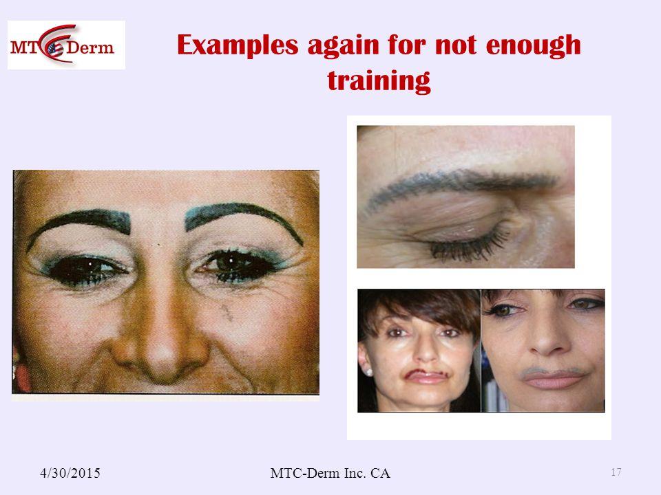 Examples again for not enough training 4/30/2015MTC-Derm Inc. CA 17