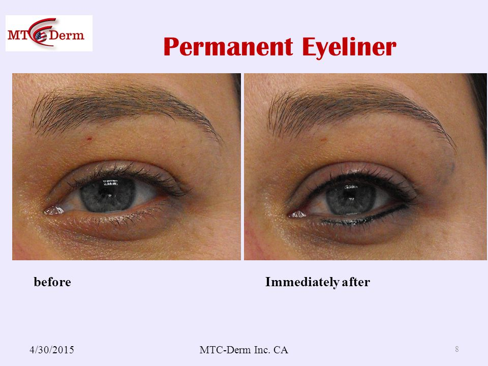 Permanent Eyeliner 4/30/2015MTC-Derm Inc. CA 8 before Immediately after