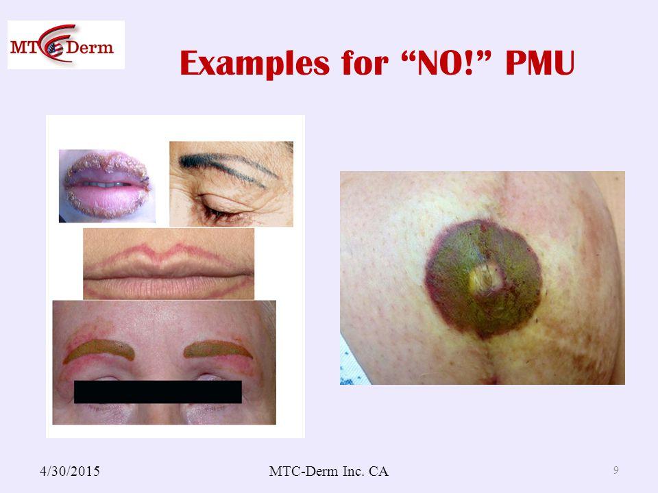 Examples for NO! PMU 4/30/2015MTC-Derm Inc. CA 9