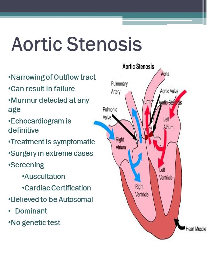 Aortic Stenosis Narrowing of Outflow tract Can result in failure Murmur detected at any age Echocardiogram is definitive Treatment is symptomatic Surgery in extreme cases Screening Auscultation Cardiac Certification Believed to be Autosomal Dominant No genetic test