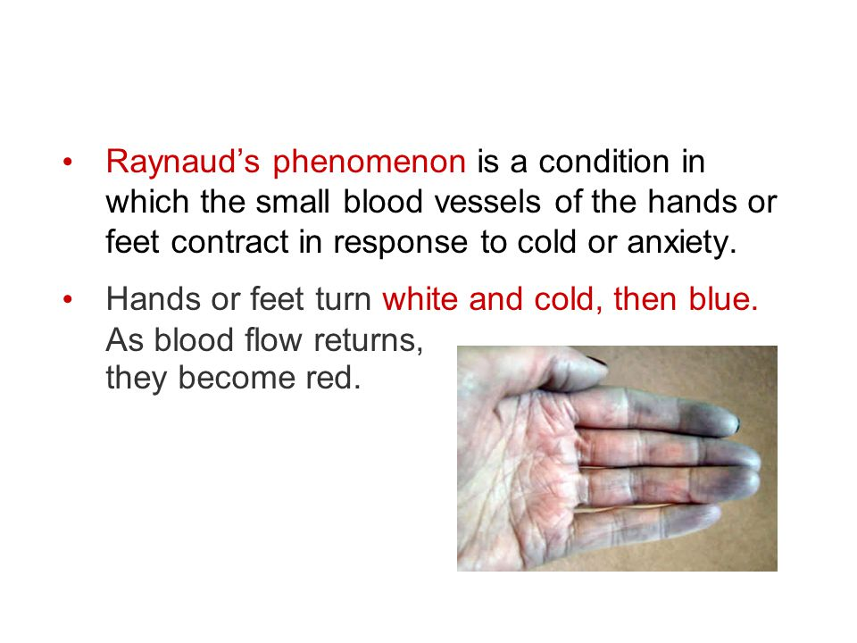 Raynaud's phenomenon is a condition in which the small blood vessels of the hands or feet contract in response to cold or anxiety. Hands or feet turn