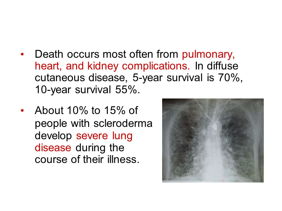 Death occurs most often from pulmonary, heart, and kidney complications. In diffuse cutaneous disease, 5-year survival is 70%, 10-year survival 55%. A