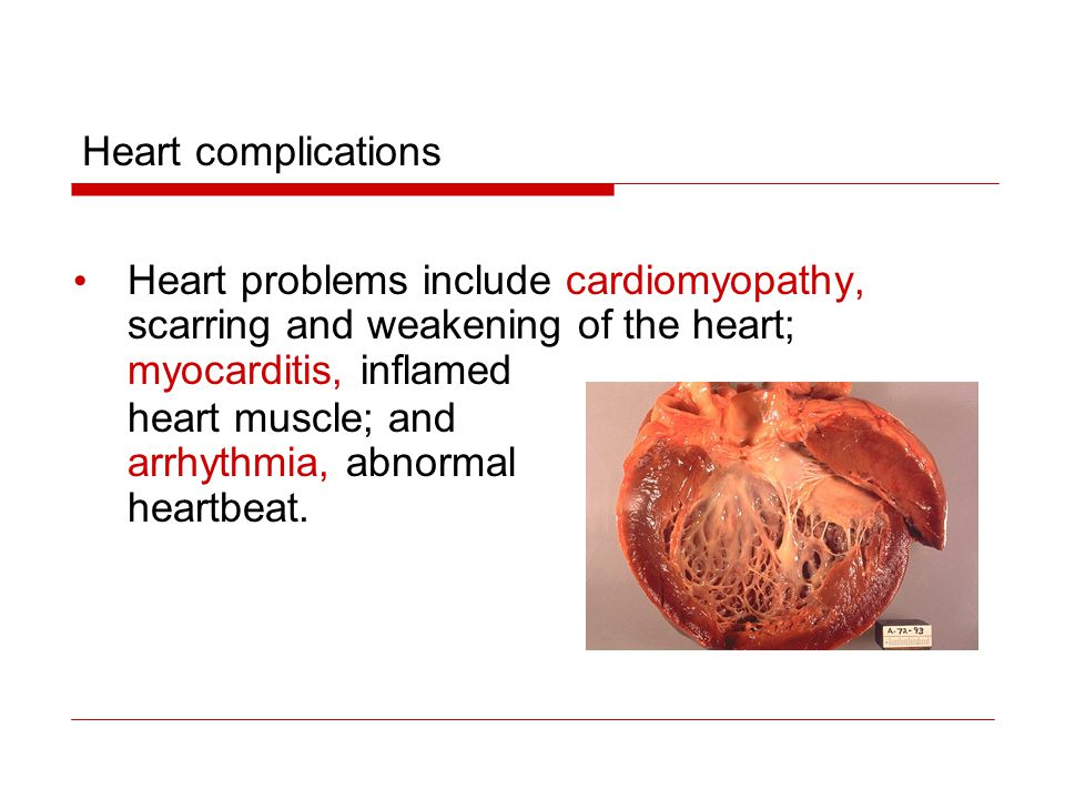 Heart problems include cardiomyopathy, scarring and weakening of the heart; myocarditis, inflamed heart muscle; and arrhythmia, abnormal heartbeat. He