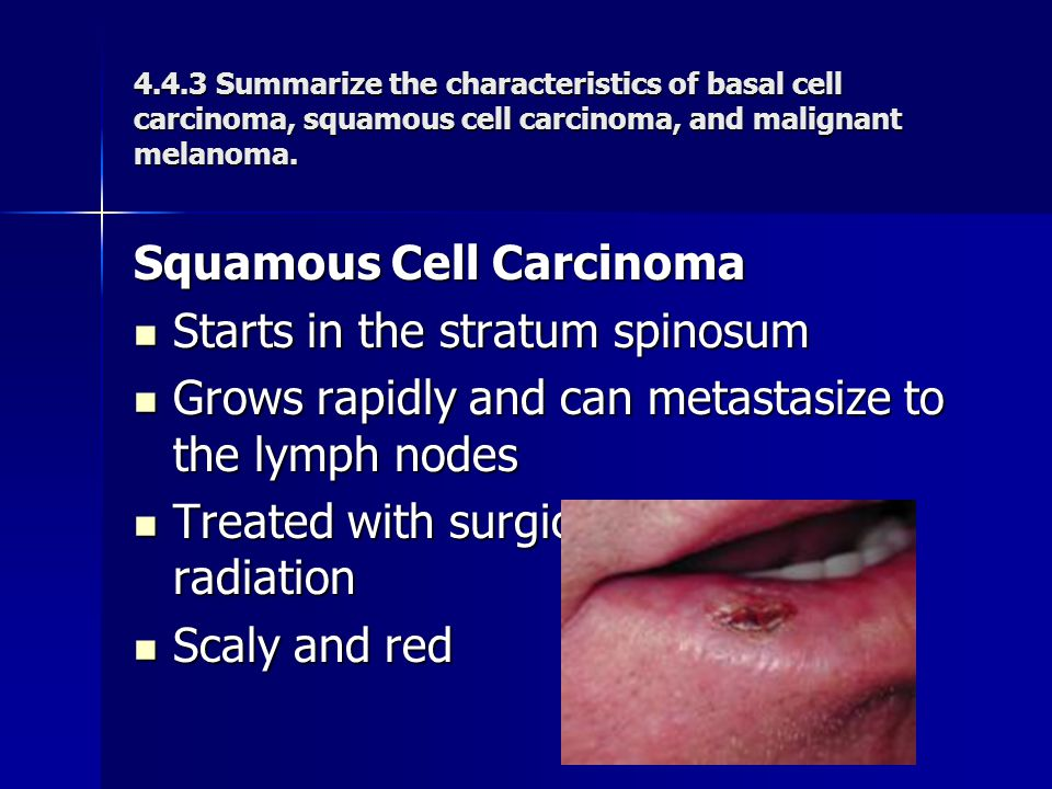 Squamous Cell Carcinoma Starts in the stratum spinosum Starts in the stratum spinosum Grows rapidly and can metastasize to the lymph nodes Grows rapid