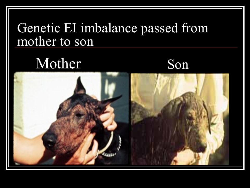 Genetic EI imbalance passed from mother to son Son Mother