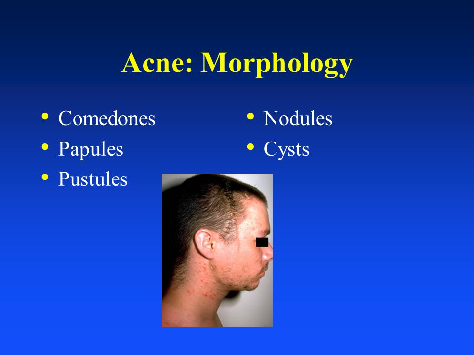 Acne: Morphology Comedones Papules Pustules Nodules Cysts