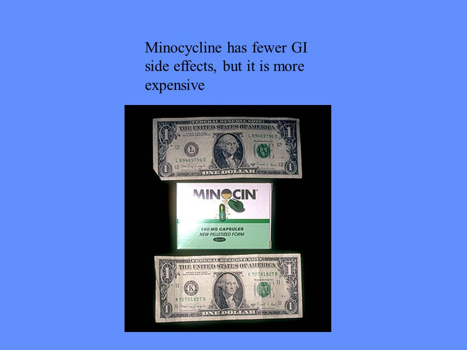 Minocycline has fewer GI side effects, but it is more expensive
