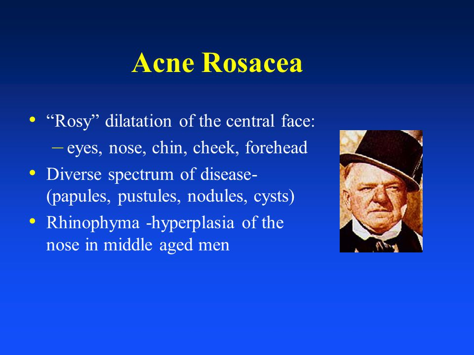 "Acne Rosacea ""Rosy"" dilatation of the central face: – eyes, nose, chin, cheek, forehead Diverse spectrum of disease- (papules, pustules, nodules, cyst"