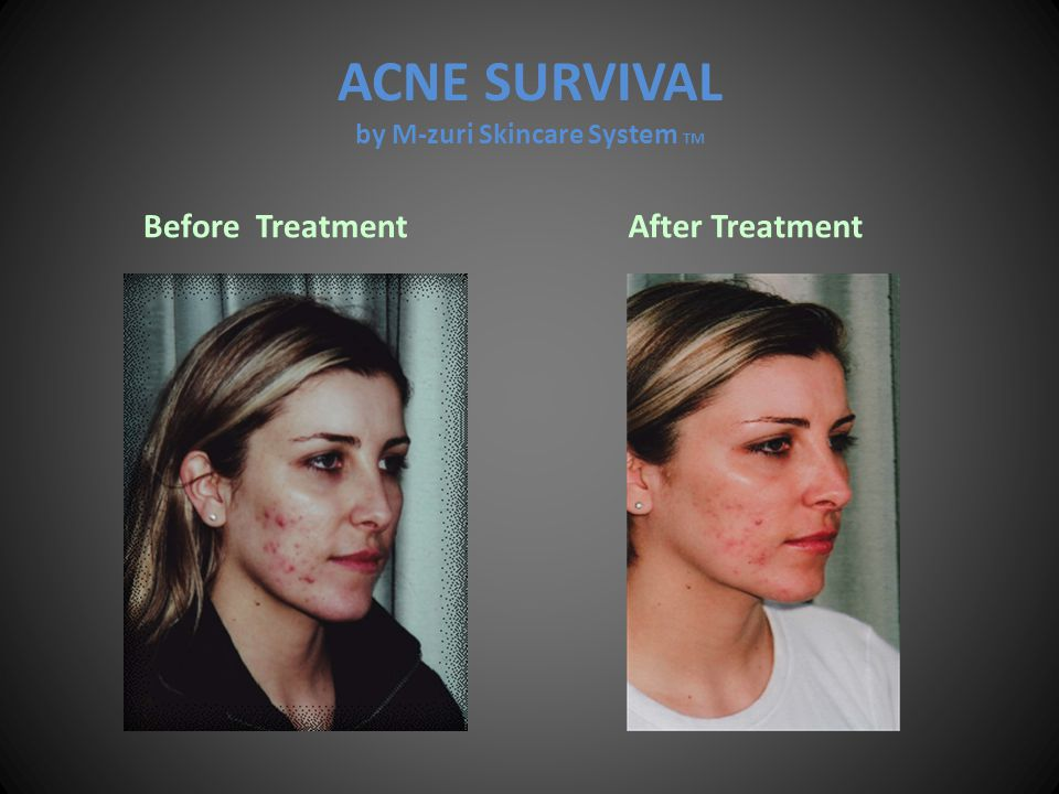 ACNE SURVIVAL by M-zuri Skincare System TM Before Treatment After Treatment