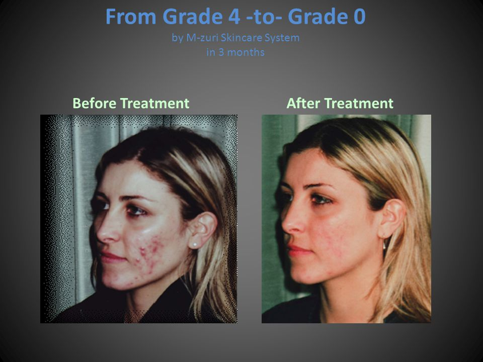 From Grade 4 -to- Grade 0 by M-zuri Skincare System in 3 months Before Treatment After Treatment