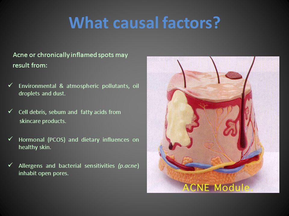 What causal factors.