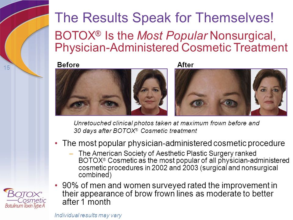 15 The Results Speak for Themselves! The most popular physician-administered cosmetic procedure –The American Society of Aesthetic Plastic Surgery ran