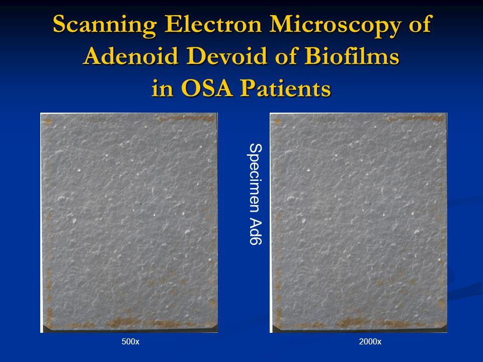Scanning Electron Microscopy of Adenoid Devoid of Biofilms in OSA Patients 500x2000x Specimen Ad6