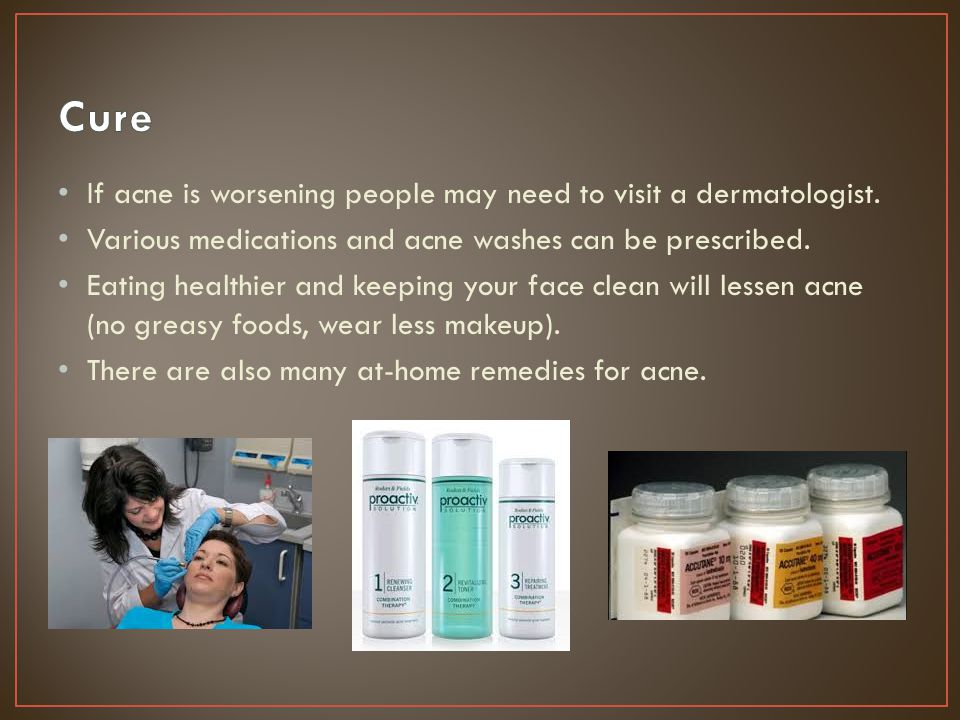 Scars can develop if the acne is very bad.