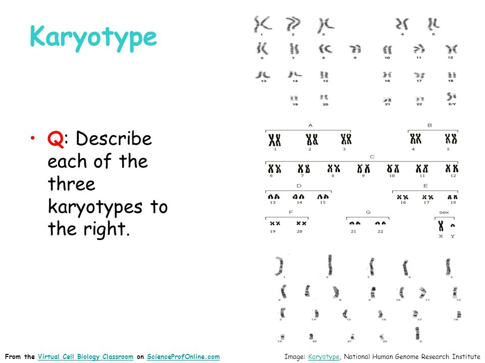 Karyotype Q: Describe each of the three karyotypes to the right.