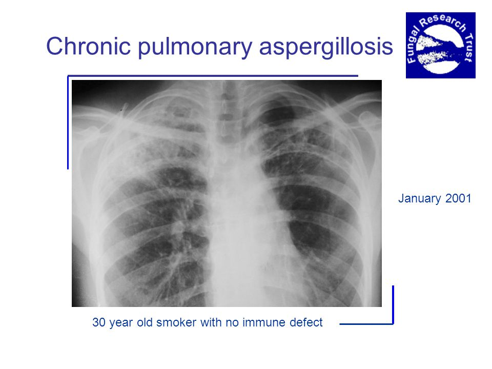 Chronic pulmonary aspergillosis 30 year old smoker with no immune defect January 2001
