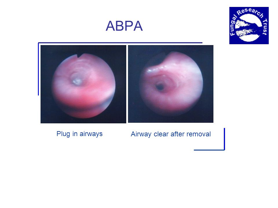 ABPA Plug in airways Airway clear after removal
