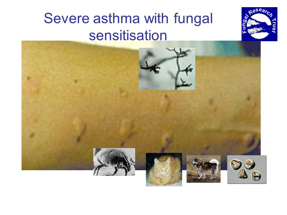 Severe asthma with fungal sensitisation