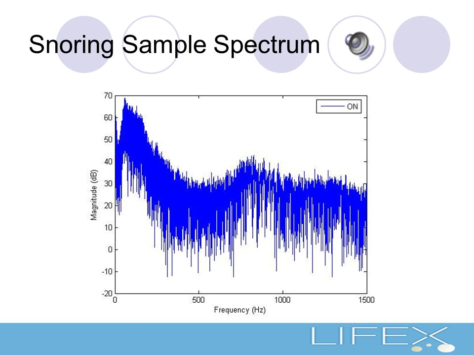 Snoring Sample Spectrum