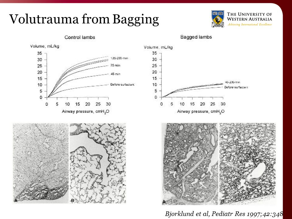 Volutrauma from Bagging Bjorklund et al, Pediatr Res 1997;42:348