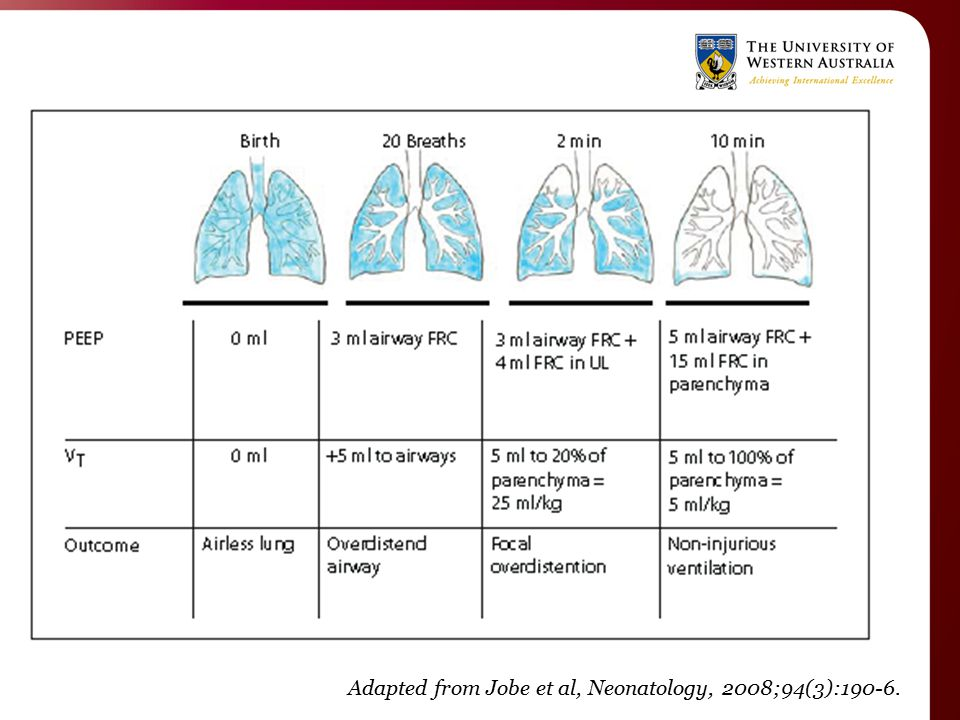 Adapted from Jobe et al, Neonatology, 2008;94(3):190-6.