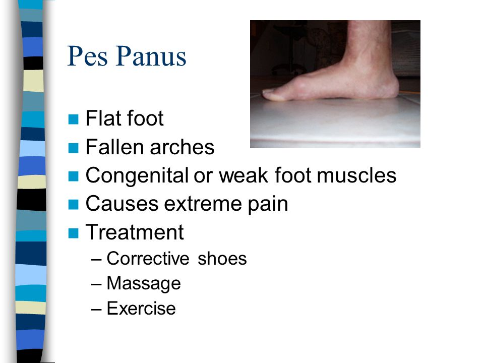 Pes Panus Flat foot Fallen arches Congenital or weak foot muscles Causes extreme pain Treatment –Corrective shoes –Massage –Exercise