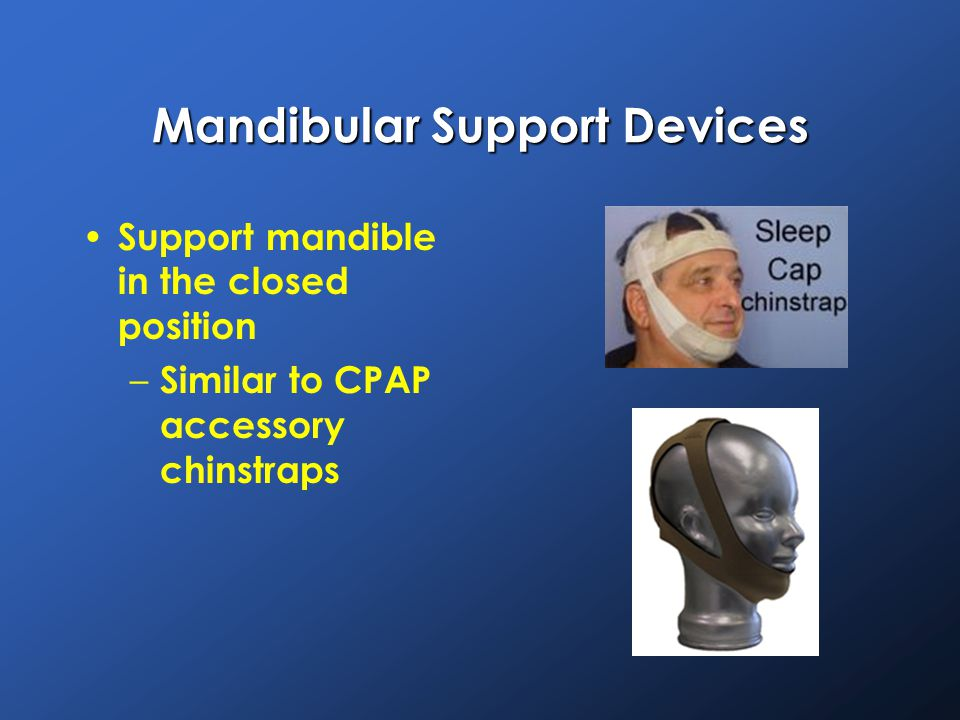 Mandibular Support Devices Support mandible in the closed position – Similar to CPAP accessory chinstraps