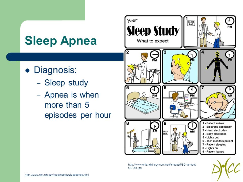Sleep Apnea Diagnosis: – Sleep study – Apnea is when more than 5 episodes per hour http://www.entandallergy.com/nad/images/PSGhandout- GOOD.jpg http://www.nlm.nih.gov/medlineplus/sleepapnea.html