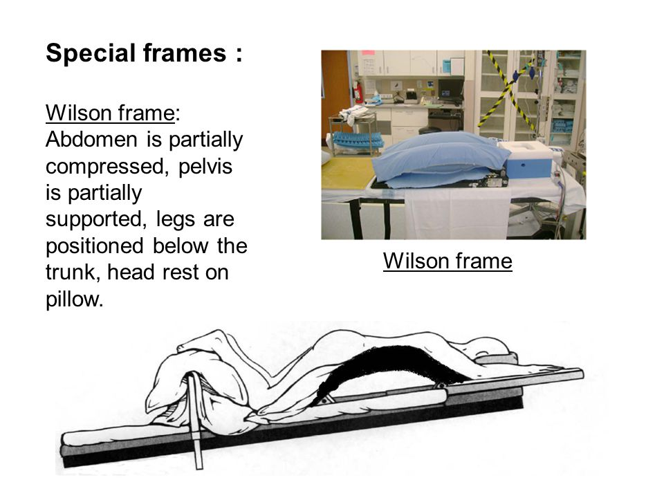 Special frames : Wilson frame: Abdomen is partially compressed, pelvis is partially supported, legs are positioned below the trunk, head rest on pillow.