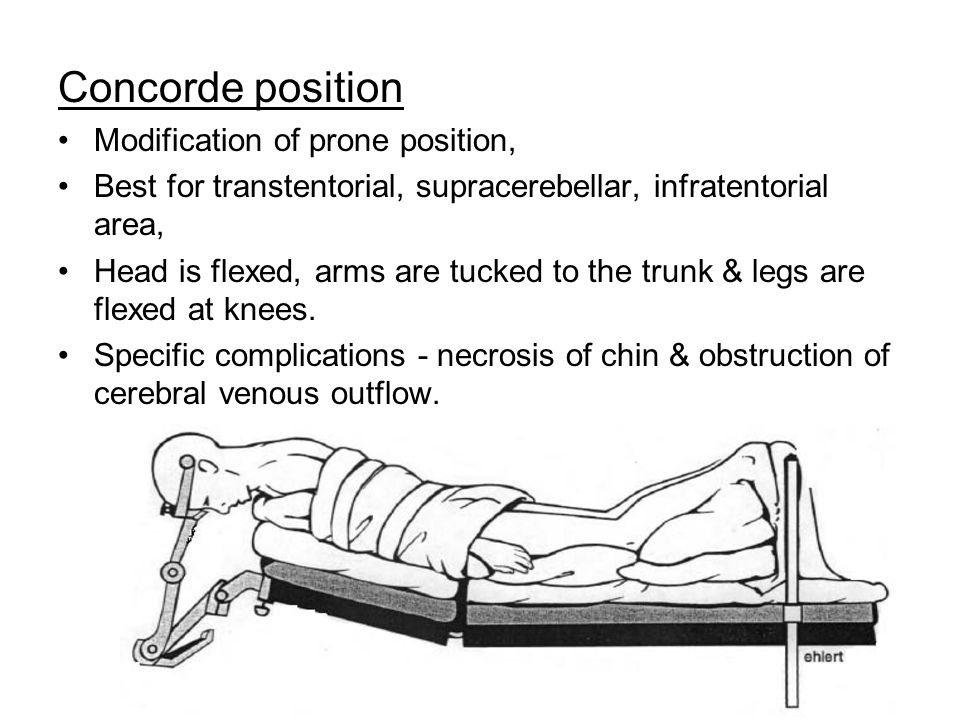 Concorde position Modification of prone position, Best for transtentorial, supracerebellar, infratentorial area, Head is flexed, arms are tucked to the trunk & legs are flexed at knees.