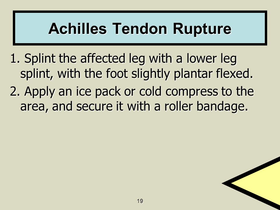 19 Achilles Tendon Rupture 1. Splint the affected leg with a lower leg splint, with the foot slightly plantar flexed. 2. Apply an ice pack or cold com