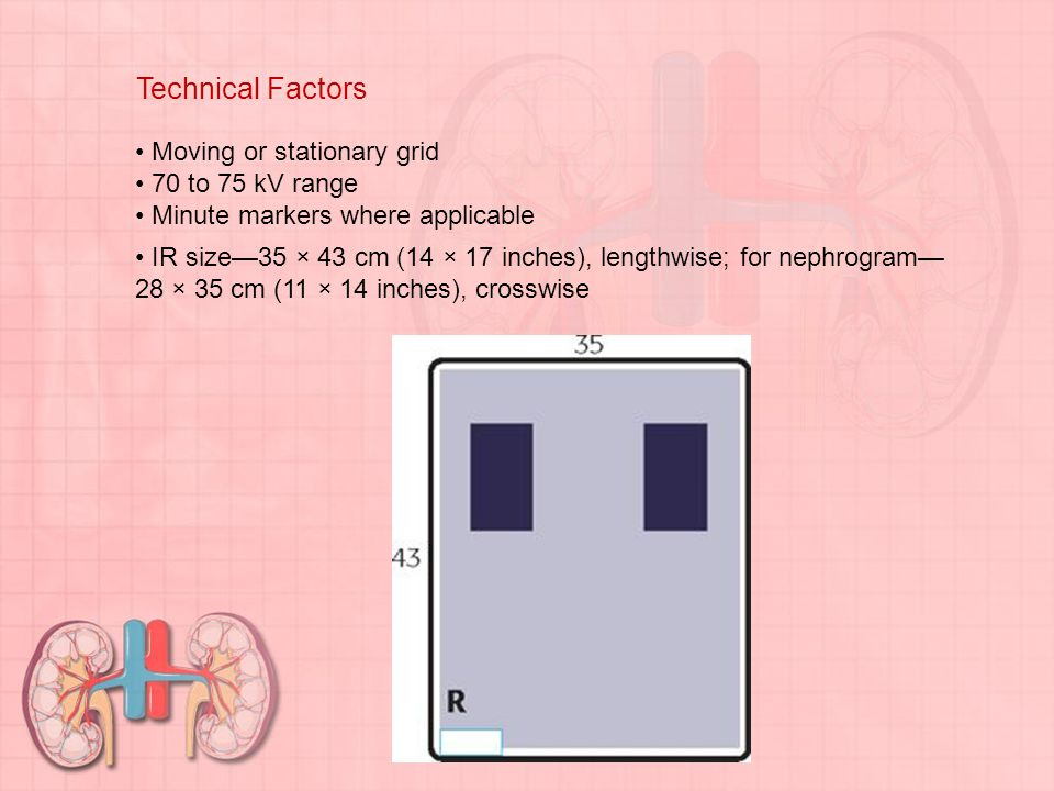 Technical Factors Moving or stationary grid 70 to 75 kV range Minute markers where applicable IR size—35 × 43 cm (14 × 17 inches), lengthwise; for nep