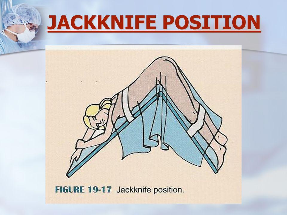 JACKKNIFE POSITION