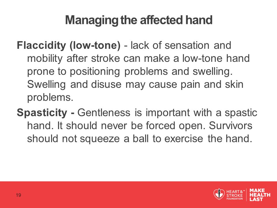 Managing the affected hand Flaccidity (low-tone) - lack of sensation and mobility after stroke can make a low-tone hand prone to positioning problems and swelling.