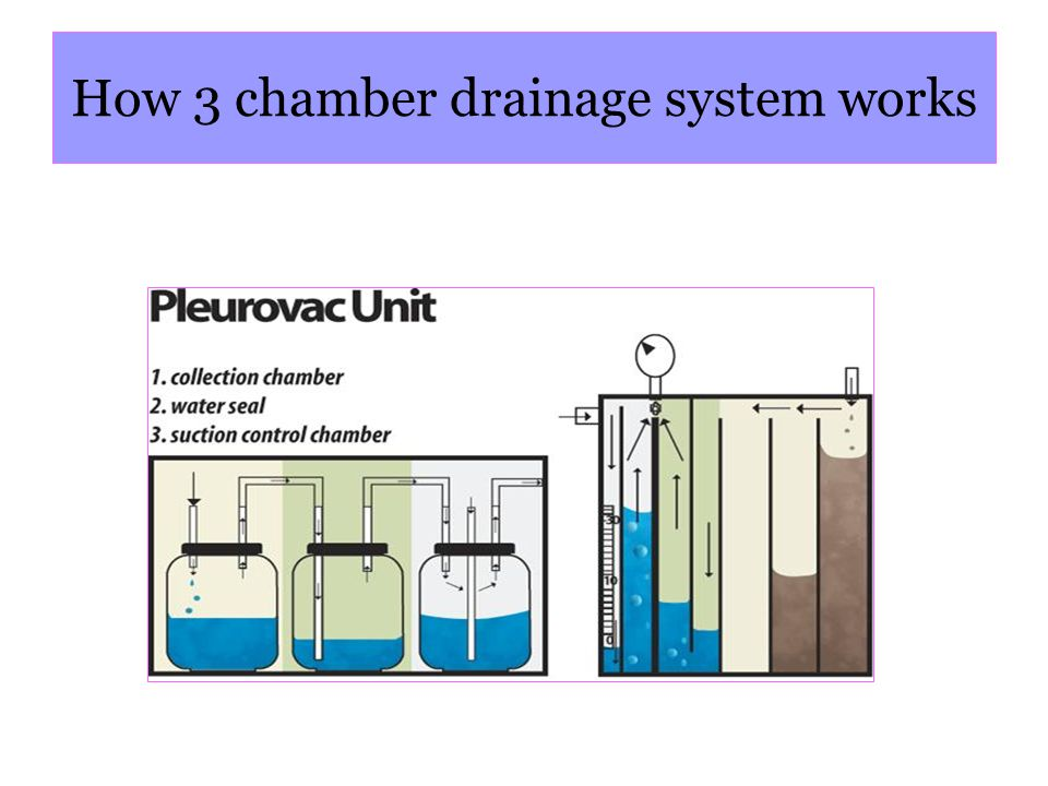 How 3 chamber drainage system works
