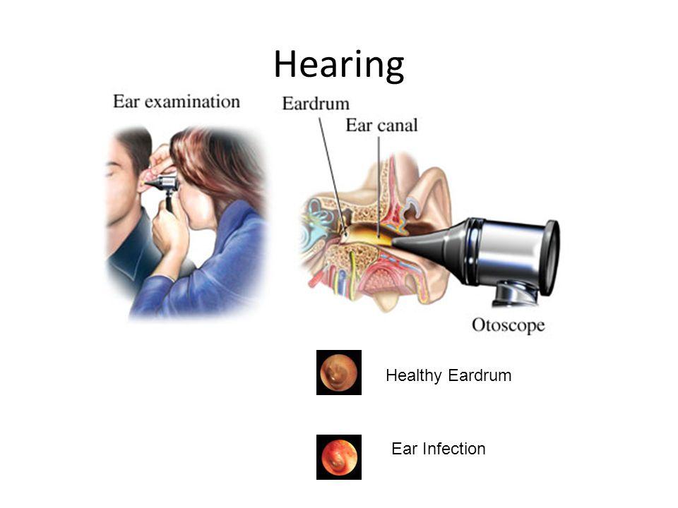 Healthy Eardrum Ear Infection Hearing