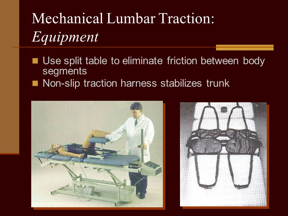 Mechanical Lumbar Traction: Equipment Use split table to eliminate friction between body segments Non-slip traction harness stabilizes trunk