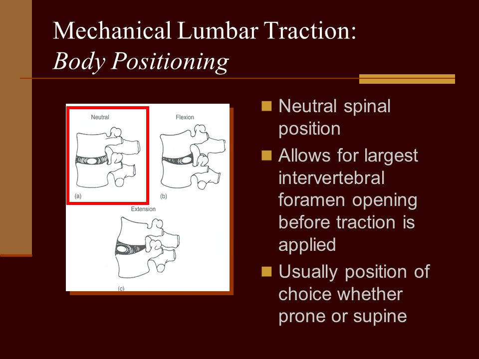 Mechanical Lumbar Traction: Body Positioning Neutral spinal position Allows for largest intervertebral foramen opening before traction is applied Usua