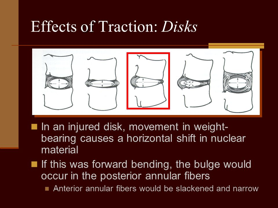 of Effects of Traction: Disks In an injured disk, movement in weight- bearing causes a horizontal shift in nuclear material If this was forward bendin