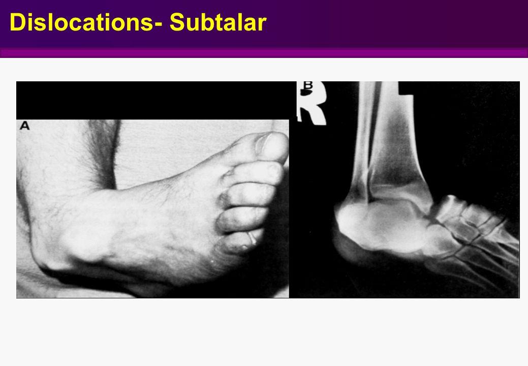 Dislocations- Subtalar