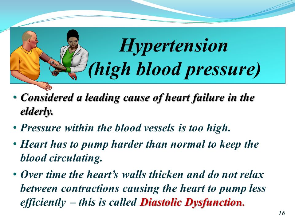 Hypertension (high blood pressure) Considered a leading cause of heart failure in the elderly.