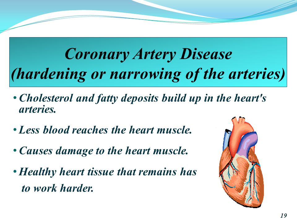 Coronary Artery Disease (hardening or narrowing of the arteries) Cholesterol and fatty deposits build up in the heart s arteries.